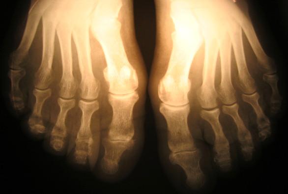 zdjęcie od ortopedy